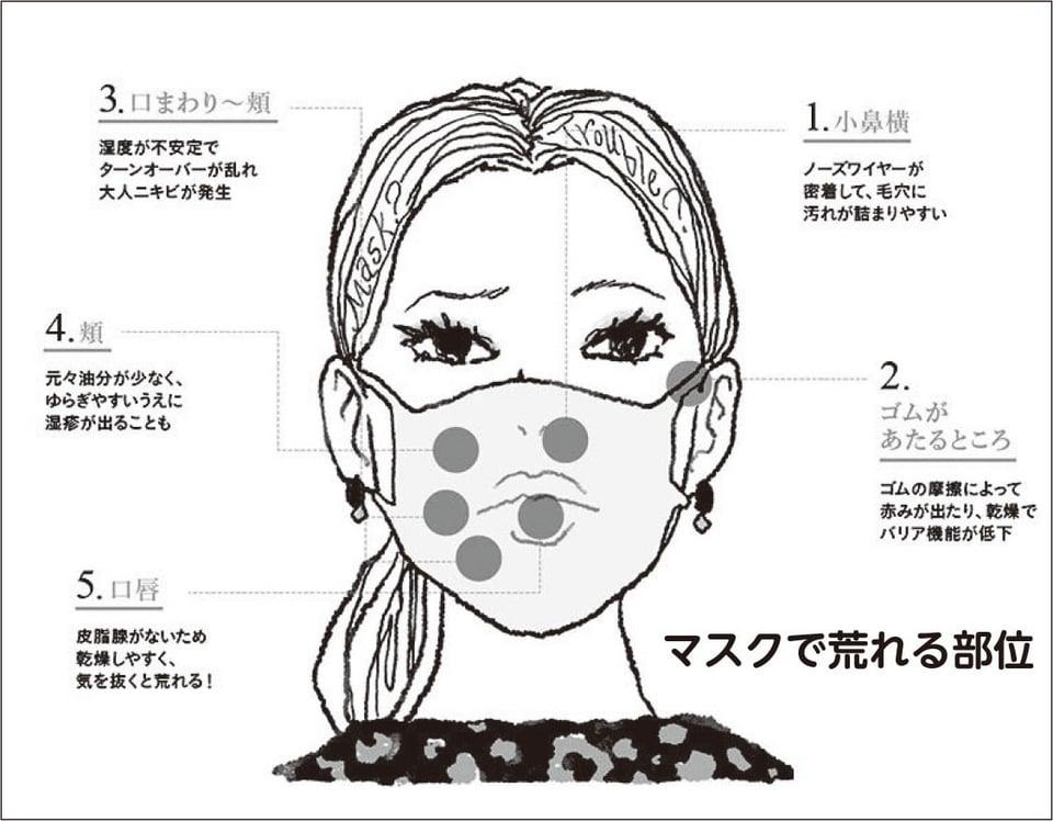 マスクによる肌荒れ